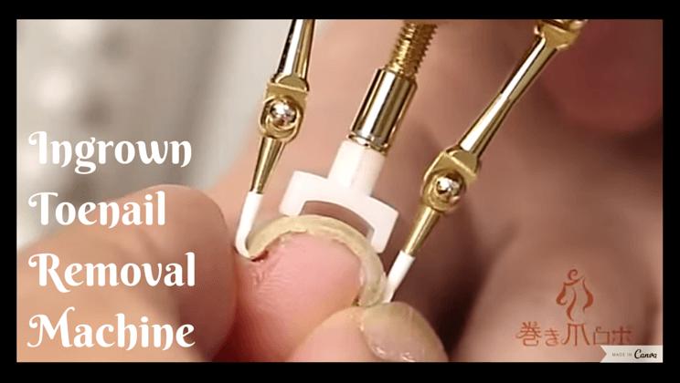 Ingrown toenail removal machine is the stuff of nightmares [video ...